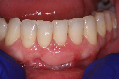 After Gingival Graft