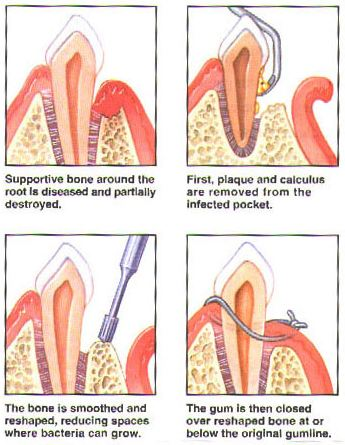Surgical Periodontal Treatments